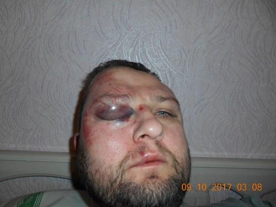 В Краматорске избивают гражданских активистов